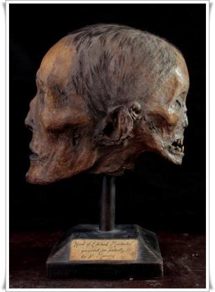 the_head_of_edward_mordrake_by_ejshindler-d9ejs5z